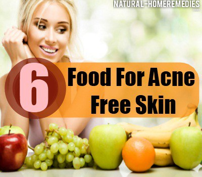 Best diet plan for acne