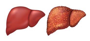 liver damaging habits